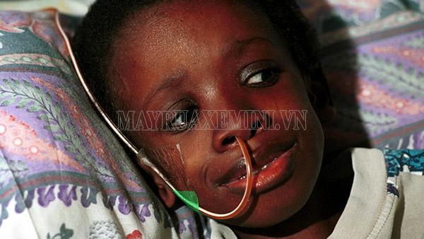 Nkosi Johnson chống chọi với HIV/AIDS